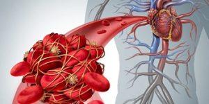 Снижая риск тромбоза