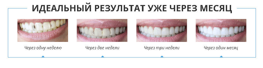 denta-seal-dostoinstva