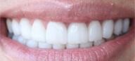 Denta Seal результат отбеливания