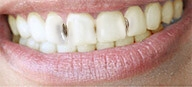 Denta Seal зубная паста результат использования