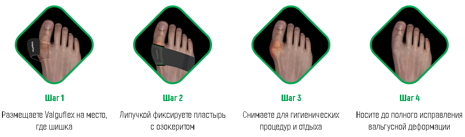valguflex-dostoinstva