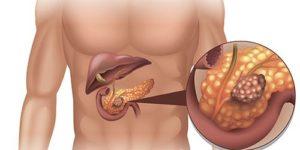 Как не пропустить рак поджелудочной железы