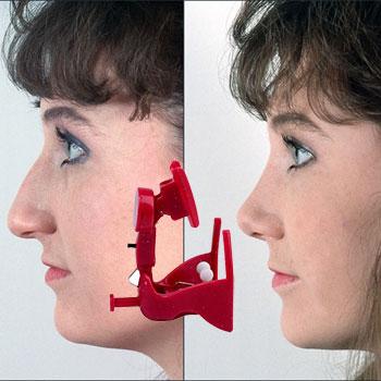 ринопласт прибор для носа