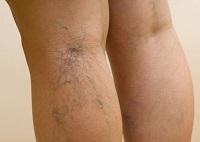 Крем от варикоза вен на ногах – какой лучше