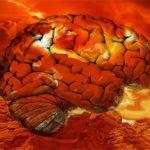 Доказано наукой: от сильной жары плавится мозг