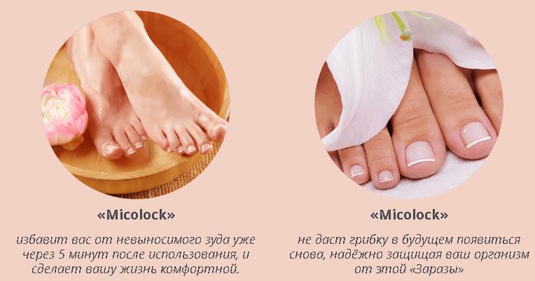 micolock-deistvie