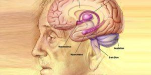 Тусклая память о прошлом может оказаться фактором риска тяжелой болезни