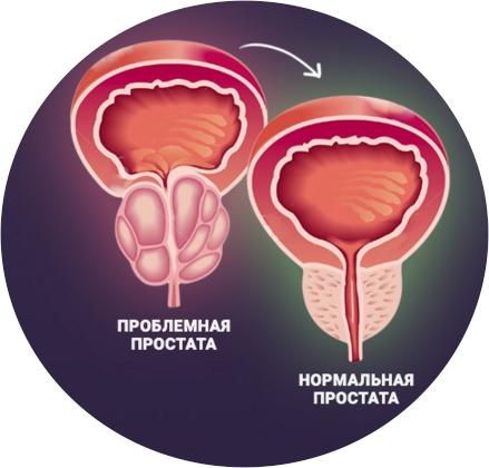 больная и нормальная простата