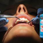 Perfect smile veeners для зубов — развод? Негативные отзывы и мнение врача.