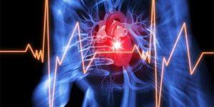Популярнейшее обезболивающее увеличивает риск инфаркта и инсульта на 50%
