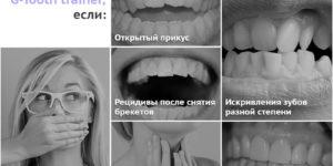 G-tooth trainer для зубов — современная замена брекетам!