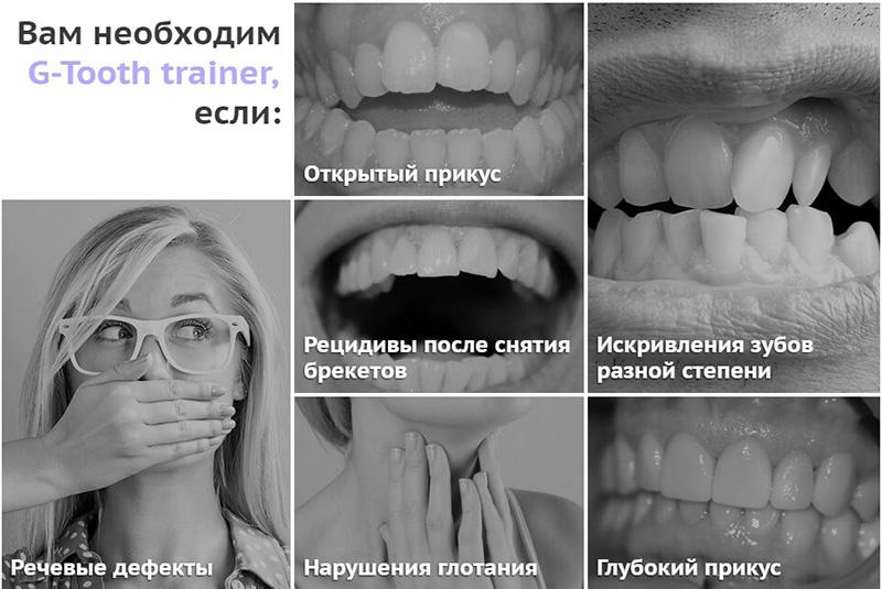 G-tooth для зубов показания