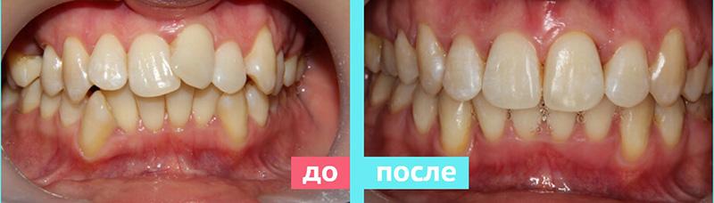 G-tooth для зубов результаты