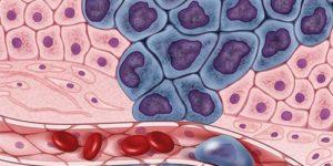 Террагностика и таргетная альфатерапия: когда «технологии будущего» придут в Россию