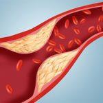 Ученые утверждают, что плохой холестерин - просто раздутый миф