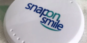 Snap-On Smile — съемные виниры