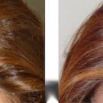 Voloxin – эффективное средство для востановления волос