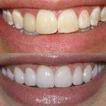 HiSmile для отбеливания зубов в домашних условиях