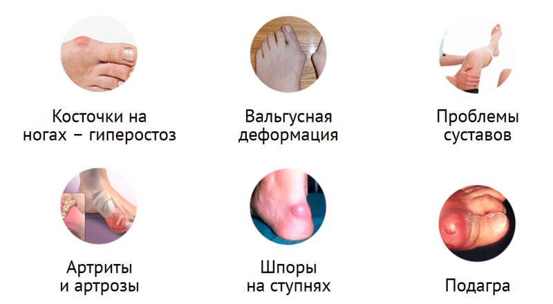 Причины применения геля