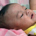 Корь вызывает «иммунную амнезию» и ослабляет защиту от других инфекций