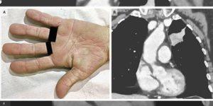 «Бархатные» ладони помогли поставить диагноз рака легкого