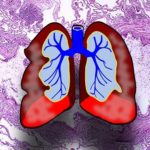 Обострение астмы связали с микробиомом дыхательных путей