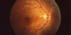 Белый хлеб и колбаса увеличивают риск необратимого поражения глаз с возрастом