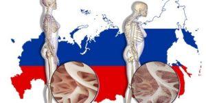 1 перелом в 3 минуты. Последствия остеопороза в России станут тяжелее, если не принять меры