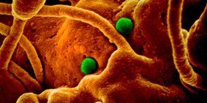 Первый случай коронавирусной пневмонии зафиксирован в Америке