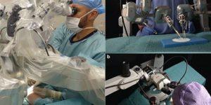 Использование робота дало новые возможности в лечении рака молочной железы