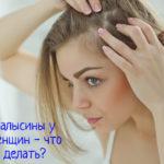 Залысины у женщин – что делать