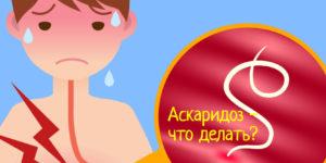 Аскаридоз – симптомы, диагностика, что делать