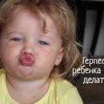 У ребенка герпес на губе – что делать