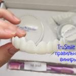 TruSmile – отзывы, инструкция по применению виниров