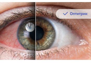 ясное зрение