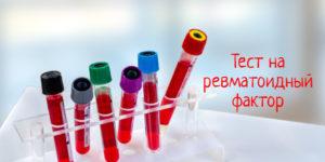 Для чего нужен тест на ревматоидный фактор