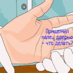 Ушиб палец дверью – что делать?