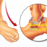 Что делать при травме связок
