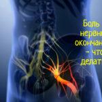 Что делать, если возникает острая боль в нервных окончаниях на шее